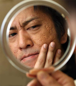 ニキビにオロナイン軟膏を塗れば治る!?治療法や間違った塗り方のサムネイル画像