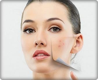 頬にニキビができる原因とは!?頬にニキビをできないようにしよう!のサムネイル画像